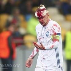 "Вида и Сидорчук получили травмы в матче против ""Янг Бойз"""