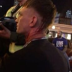 """В Киеве не будут усиливать охрану из-за инцидента с фанатами """"Ливерпуля"""""""