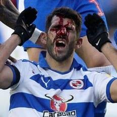 Нелсон Оливейра получил ужасную травму лица